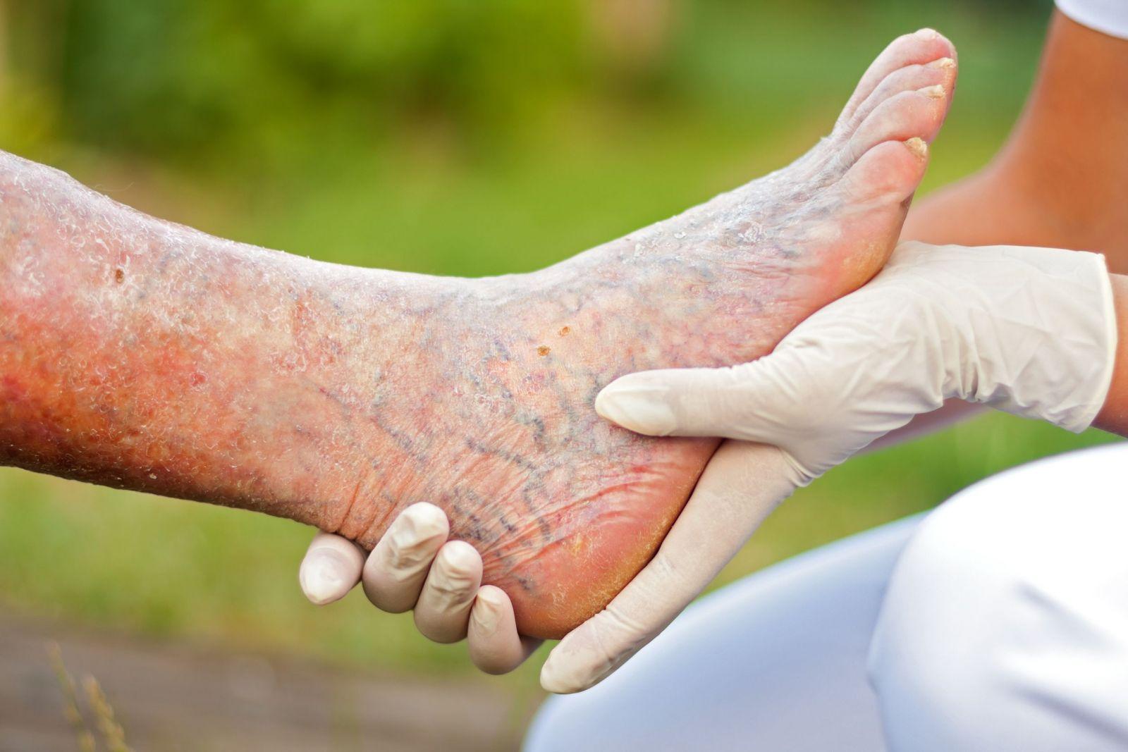 Signs Of Leg Gangrene 6