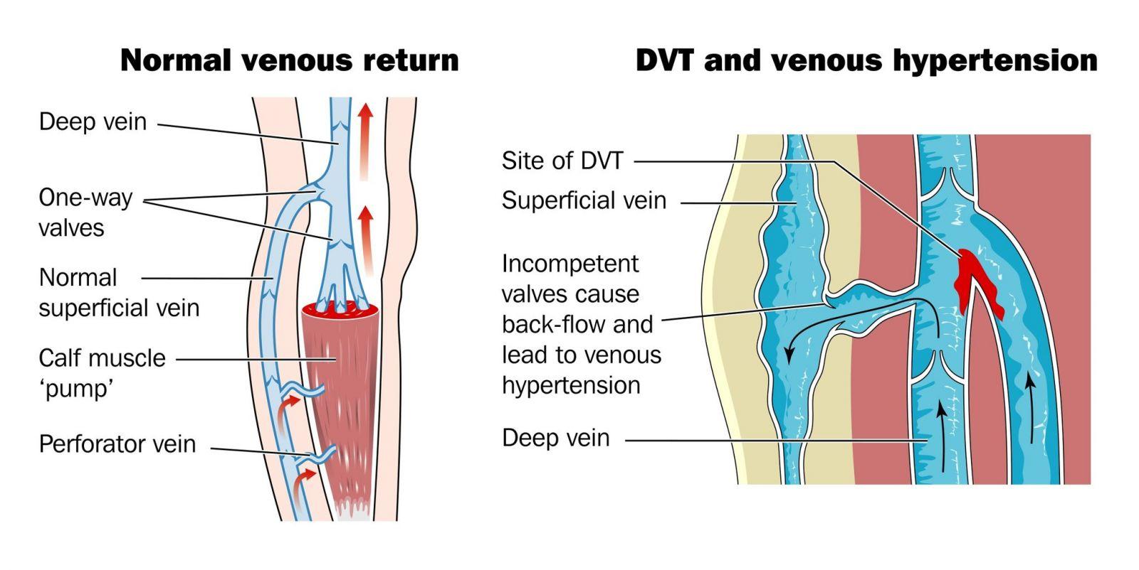 deep vein thrombosis singapore | causes symptoms diagnosis, Human Body
