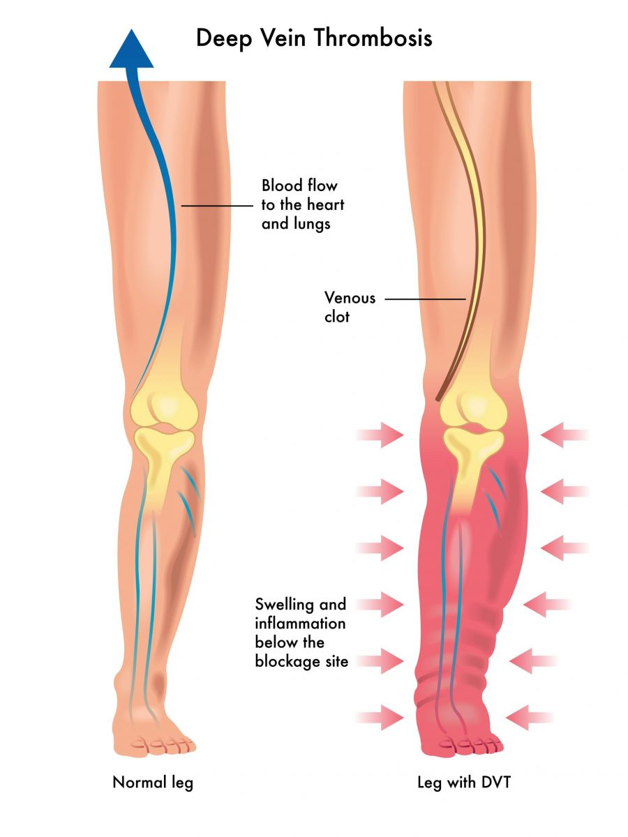 deep vein thrombosis singapore | causes symptoms diagnosis, Human Body