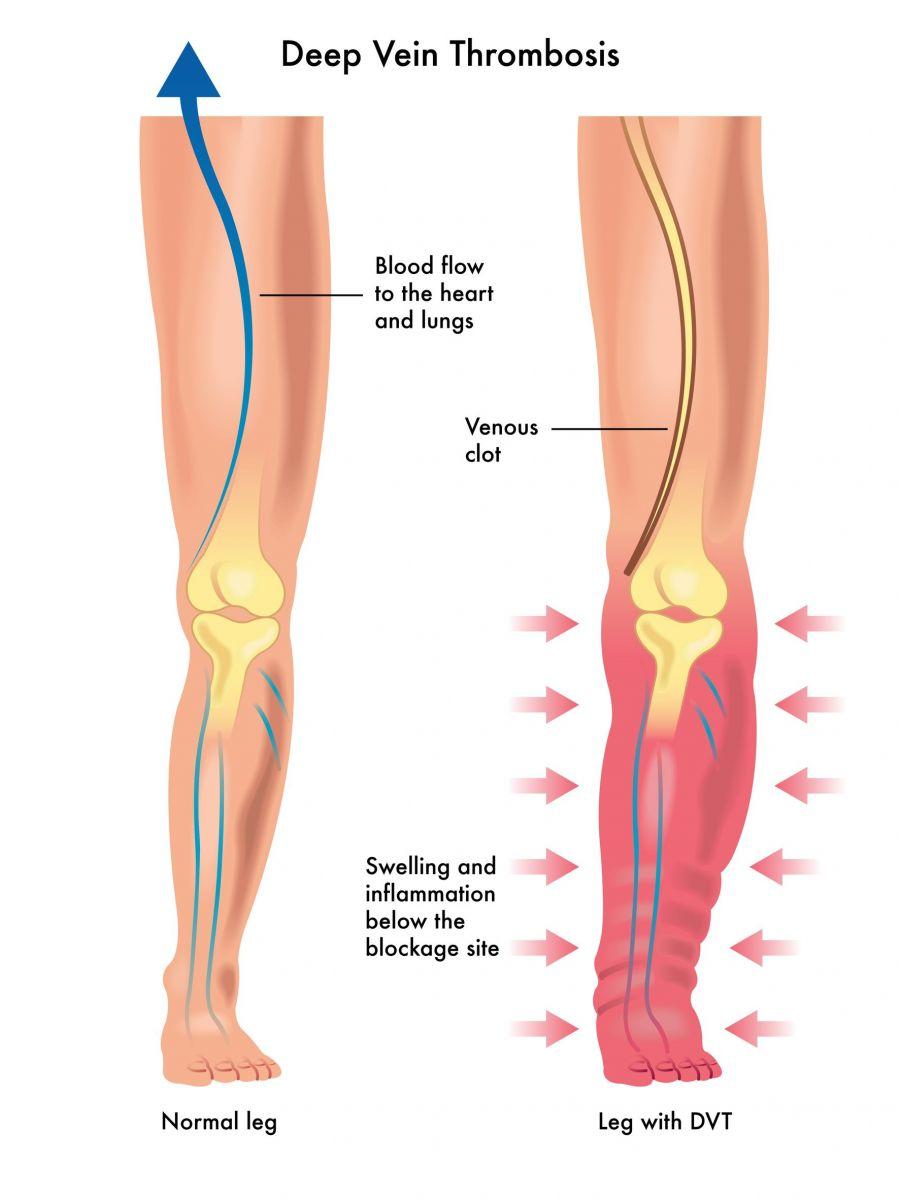 trombose in been verschijnselen