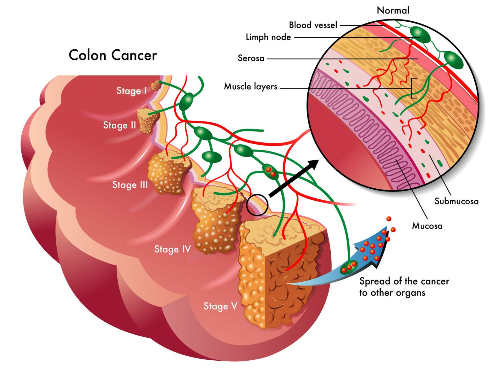 the causes and main treatments for colon cancer What causes colon cancer colon cancer main: what is colon cancer: colon cancer news : the exact reason why colorectal cancer develops on.