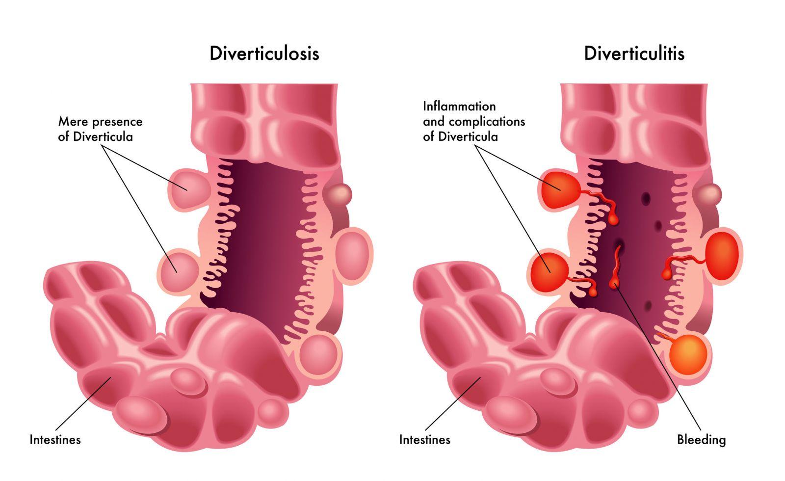 Diverticulitis Diverticulosis Singapore Diverticular Disease