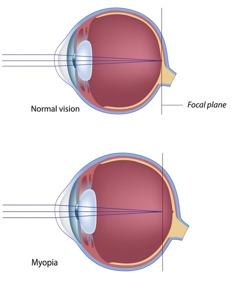 eye diseases nearsightedness The onset of myopia at an early age brings with it the likelihood of life-long eye care, there is a significantly increased risk of serious ocular health problems with high myopia, which can lead to vision loss and blindness.