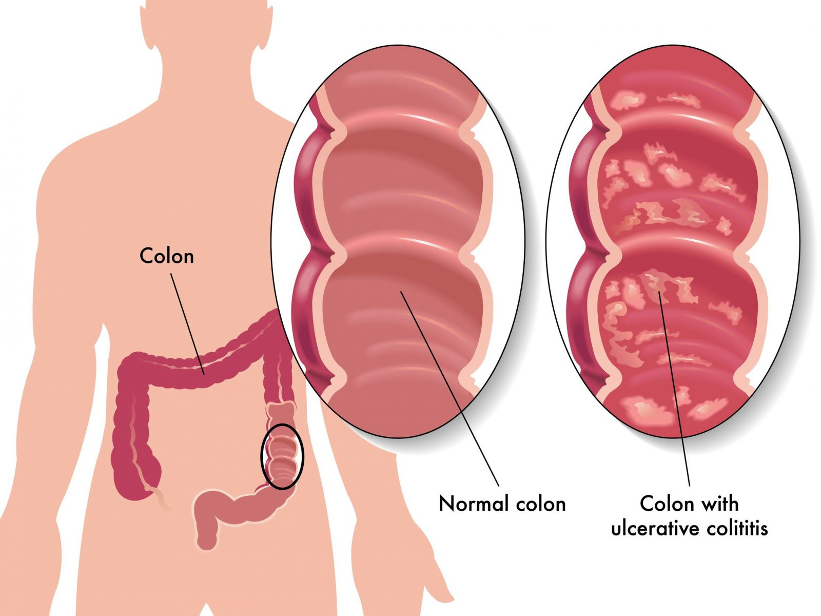 What is colitis 91