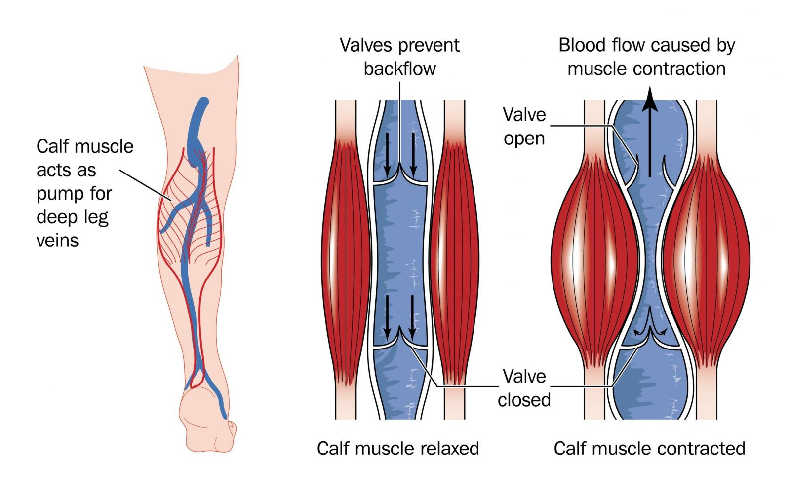 Image result for Venous insufficiency